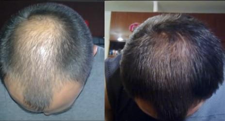 Средство для востановления волос